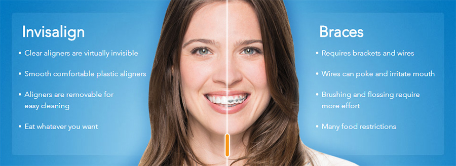 Invisalign vs metal braces in Pearland and Manvel
